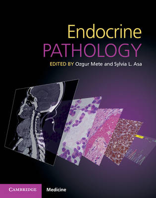 Endocrine Pathology with Online Resource