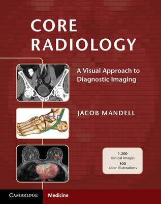 Core Radiology: A Visual Approach to Diagnostic Imaging (Paperback)