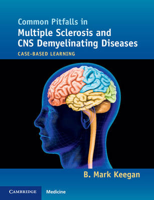 Common Pitfalls in Multiple Sclerosis and CNS Demyelinating Diseases: Case-Based Learning (Paperback)