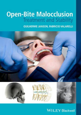 Open-Bite Malocclusion: Treatment and Stability (Paperback)
