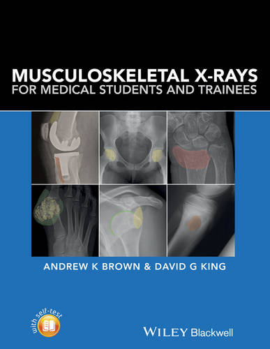 Musculoskeletal X-Rays for Medical Students and Trainees (Paperback)