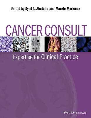 Cancer Consult: Expertise for Clinical Practice (Paperback)