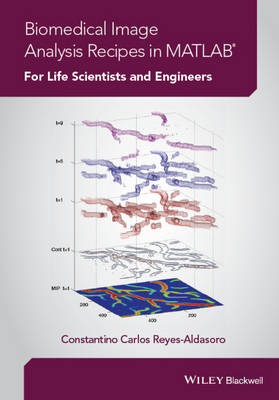 Biomedical Image Analysis Recipes in MATLAB: For Life Scientists and Engineers (Hardback)