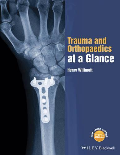 Trauma and Orthopaedics at a Glance - At a Glance (Paperback)
