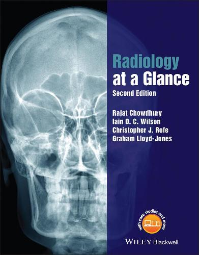 Radiology at a Glance - At a Glance (Paperback)