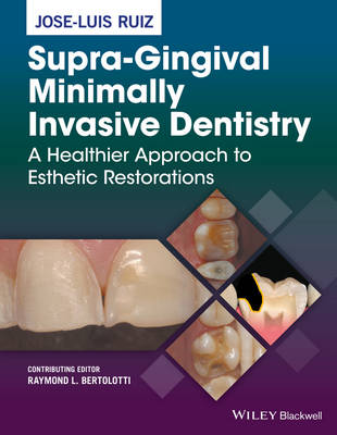 Supra-Gingival Minimally Invasive Dentistry: A Healthier Approach to Esthetic Restorations (Hardback)