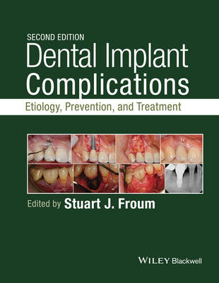 Dental Implant Complications: Etiology, Prevention, and Treatment (Hardback)