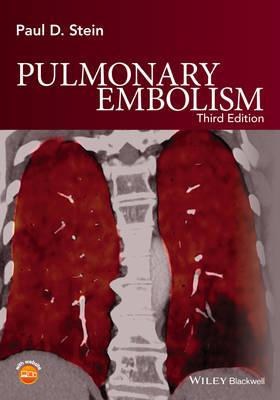 Pulmonary Embolism 3E (Hardback)