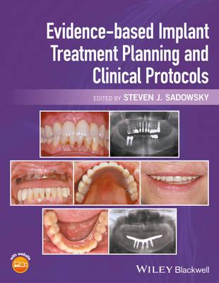 Evidence-based Implant Treatment Planning and Clinical Protocols (Hardback)