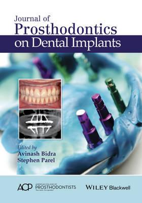 Journal of Prosthodontics on Dental Implants (Hardback)