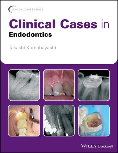 Clinical Cases in Endodontics - Clinical Cases (Dentistry) (Paperback)