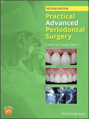 Practical Advanced Periodontal Surgery (Hardback)