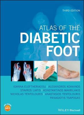 Atlas of the Diabetic Foot (Hardback)