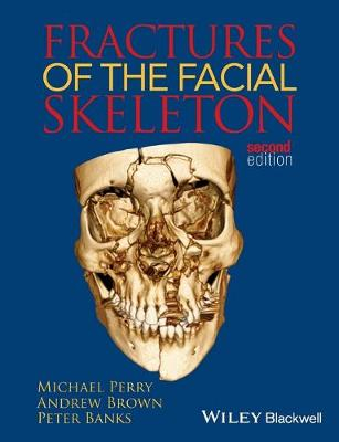 Fractures of the Facial Skeleton (Paperback)
