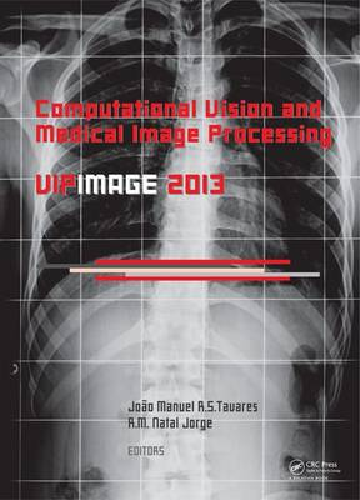 Computational Vision and Medical Image Processing IV: VIPIMAGE 2013 (Hardback)