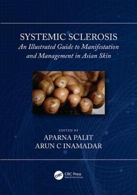Systemic Sclerosis: An Illustrated Guide to Manifestation and Management in Asian Skin (Hardback)
