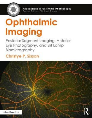 Ophthalmic Imaging: Posterior Segment Imaging, Anterior Eye Photography, and Slit Lamp Biomicrography - Applications in Scientific Photography (Paperback)
