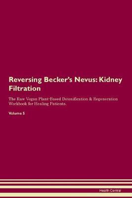Reversing Becker's Nevus: Kidney Filtration The Raw Vegan Plant-Based Detoxification & Regeneration Workbook for Healing Patients. Volume 5 (Paperback)