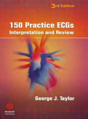 150 Practice ECGs: Interpretation and Review (Paperback)