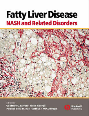 Fatty Liver Disease: NASH and Related Disorders (Hardback)