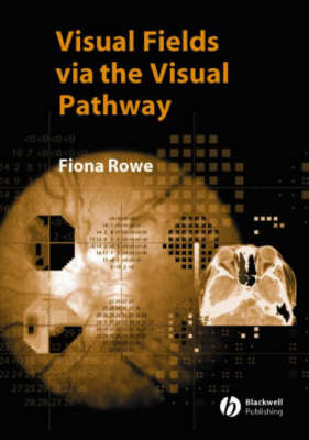 The Visual Fields Via the Visual Pathway (Paperback)
