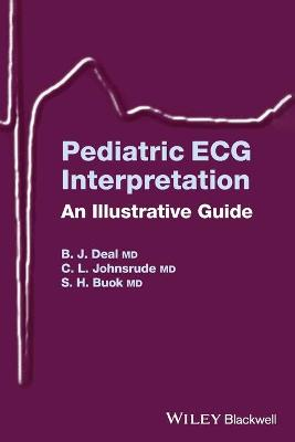 Pediatric ECG Interpretation: An Illustrative Guide (Paperback)