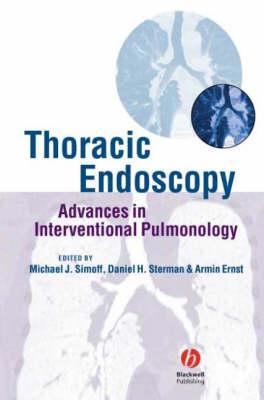 Thoracic Endoscopy: Advances in Interventional Pulmonology (Hardback)
