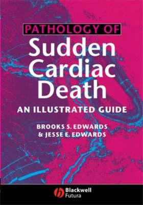 Pathology of Sudden Cardiac Death: An Illustrated Guide (Hardback)