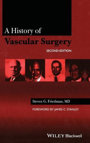 A History of Vascular Surgery (Hardback)
