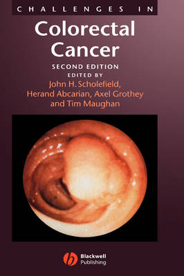 Challenges in Colorectal Cancer (Hardback)