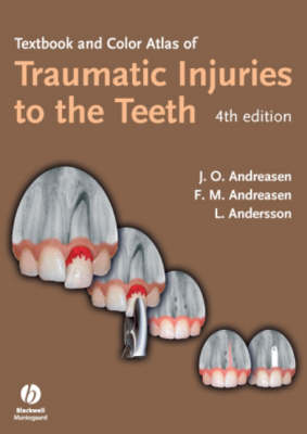 Textbook and Color Atlas of Traumatic Injuries to the Teeth 4E (Hardback)