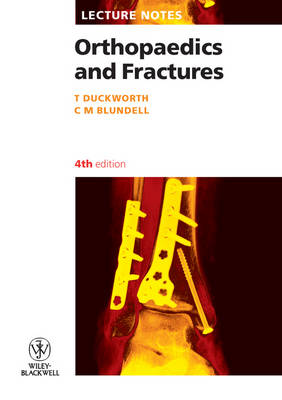 Orthopaedics and Fractures - Lecture Notes (Paperback)