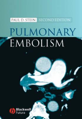 Pulmonary Embolism (Hardback)