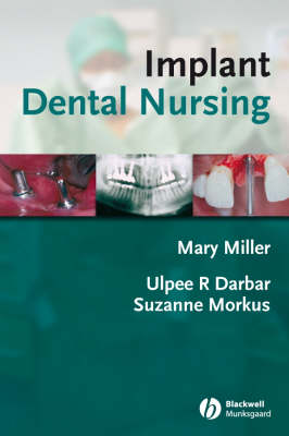 Implant Dental Nursing (Paperback)