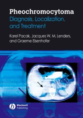Pheochromocytoma: Diagnosis, Localization, and Treatment (Hardback)