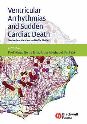 Ventricular Arrhythmias and Sudden Cardiac Death: Mechanism, Ablation, and Defibrillation (Hardback)