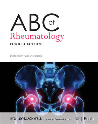 ABC of Rheumatology - ABC Series (Paperback)