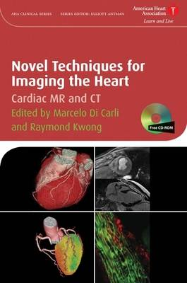 Novel Techniques for Imaging the Heart: Cardiac MR and CT - American Heart Association Clinical Series (Hardback)
