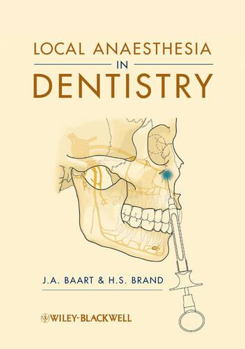 Local Anaesthesia in Dentistry (Paperback)