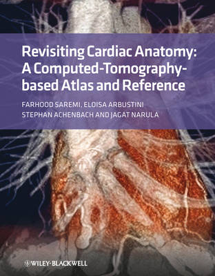 Revisiting Cardiac Anatomy: A Computed-Tomography-Based Atlas and Reference (Hardback)