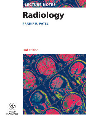 Lecture Notes - Radiology 3E - Lecture Notes (Paperback)
