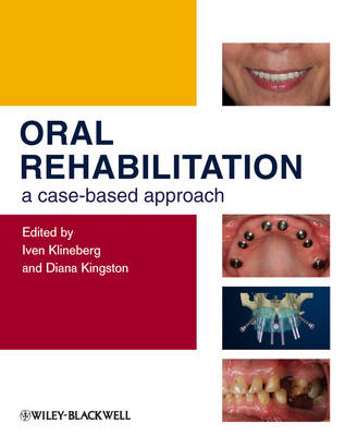 Oral Rehabilitation - a Case-based Approach (Hardback)