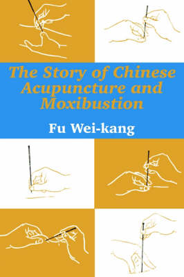 The Story of Chinese Acupuncture and Moxibustion (Paperback)