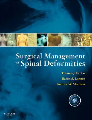 Surgical Management of Spinal Deformities (Hardback)