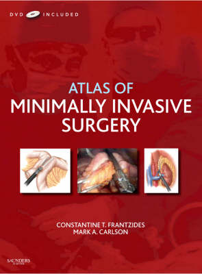 Atlas of Minimally Invasive Surgery
