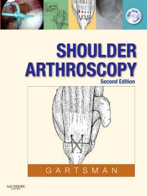 Shoulder Arthroscopy (Hardback)