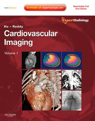 Cardiovascular Imaging, 2-Volume Set: Expert Radiology Series - Expert Radiology (Hardback)