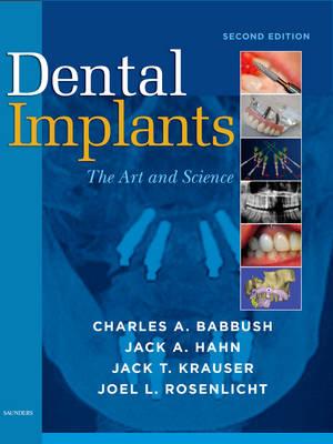 Dental Implants: The Art and Science (Hardback)