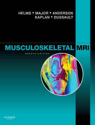 Musculoskeletal MRI (Hardback)
