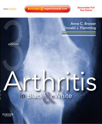 Arthritis in Black and White: Expert Consult - Online and Print (Hardback)